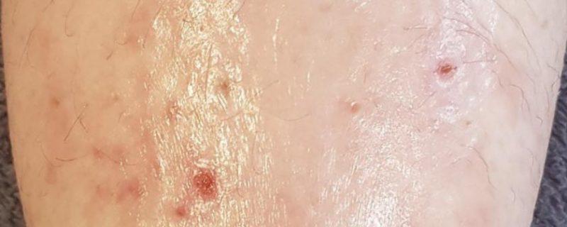 Erfahrungsbericht - Ekzem mit Aloe vera behandeln