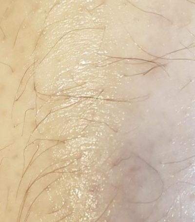 Ekzem nach der Behandlung mit Aloe vera
