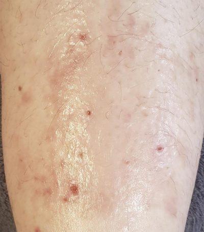 Ekzem vor der Behandlung mit Aloe vera