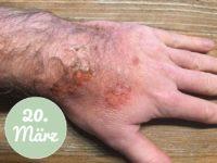 Meine Hand am 20. März