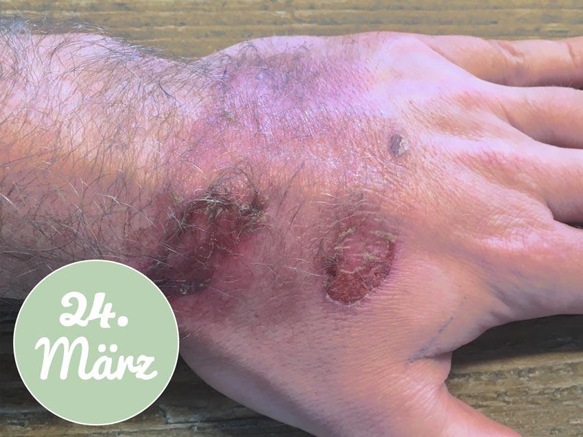 Meine Hand am 24. März - Behandlung mit Aloe vera Gel