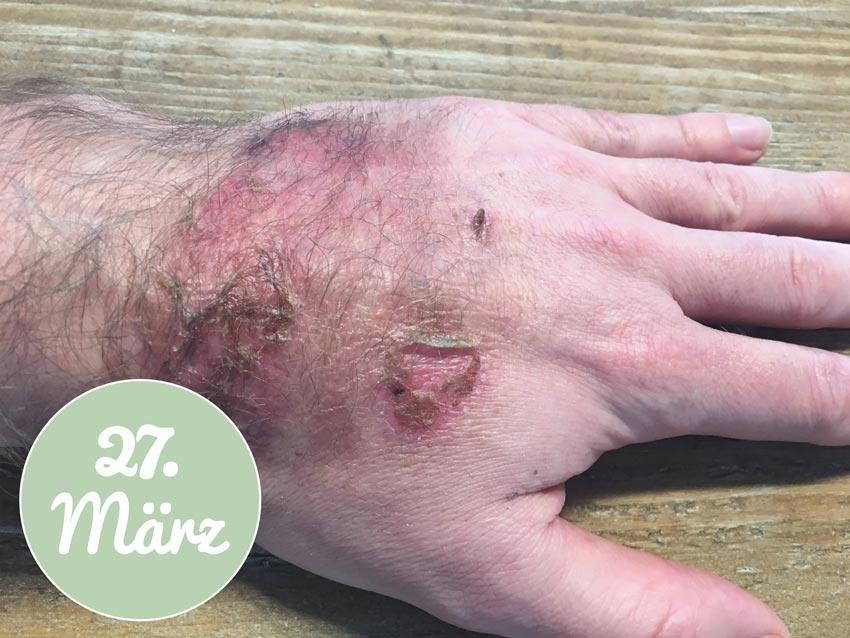 Am 27. März sieht die Hand nach der Verbrennung so aus
