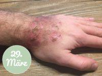 Behandlung der Hand mit Aloe vera am 29. März