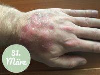 Behandlung mit Aloe vera am 31. März