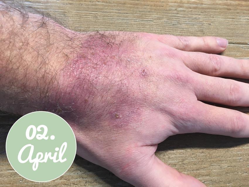 Die Hand nach der Behandlung mit Aloe vera Gel am 02. April