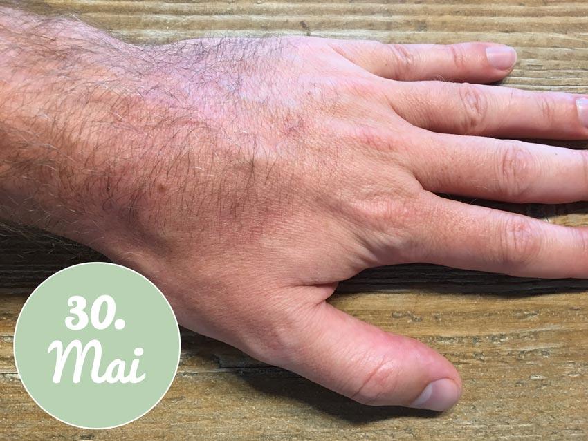 Meine Hand nach der Aloe vera Gel Behandlung HEUTE